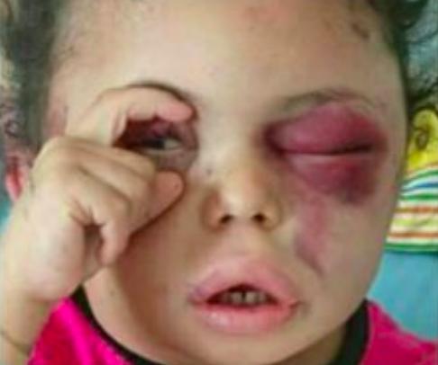 Buzaina, la niña que se convirtió tristemente en protagonista de la campaña 'un gesto por la humanidad' (Fotografía Twitter).